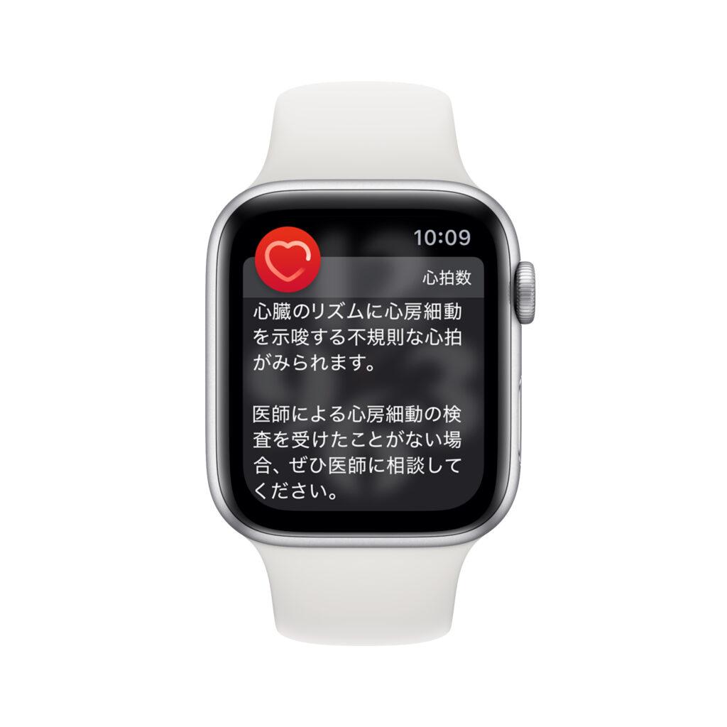不規則な心拍リズムを検出したときのApple Watch画面