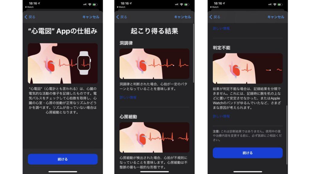 心電図アプリを使用するための設定手順③