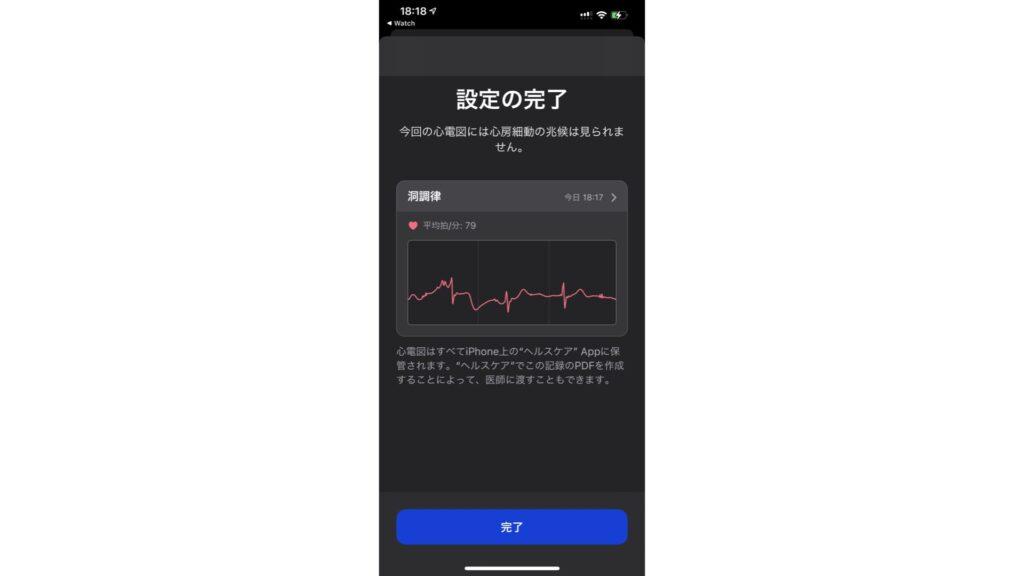 心電図アプリで測定し終えたときの結果画面