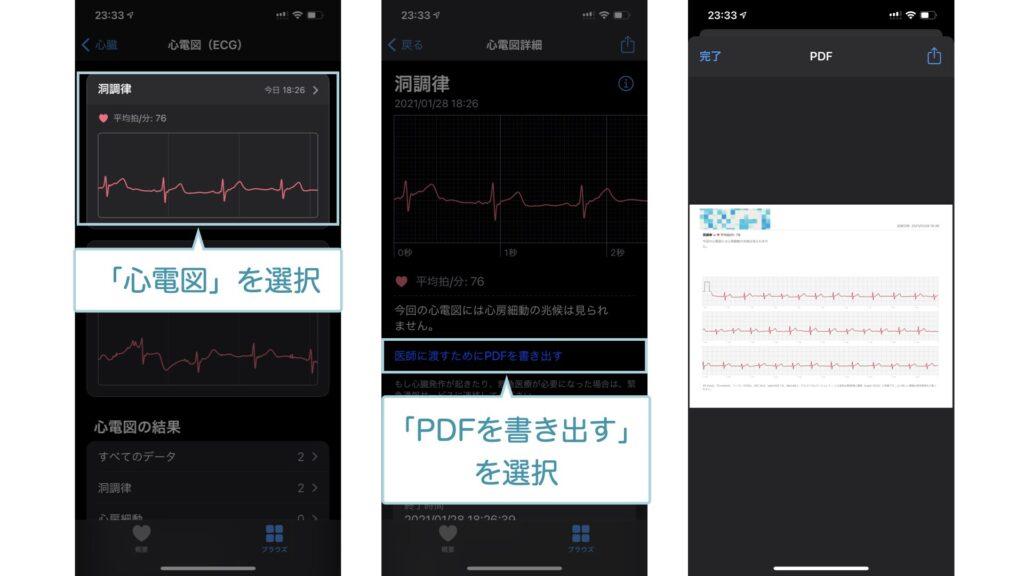 心電図をPDFに変換するときの手順①